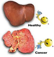 Obat Herbal Kanker Hati
